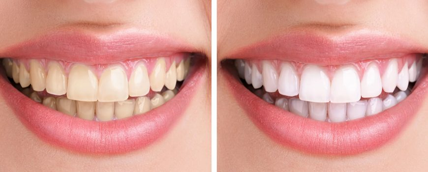 Before and After teeth whitening in Cobham